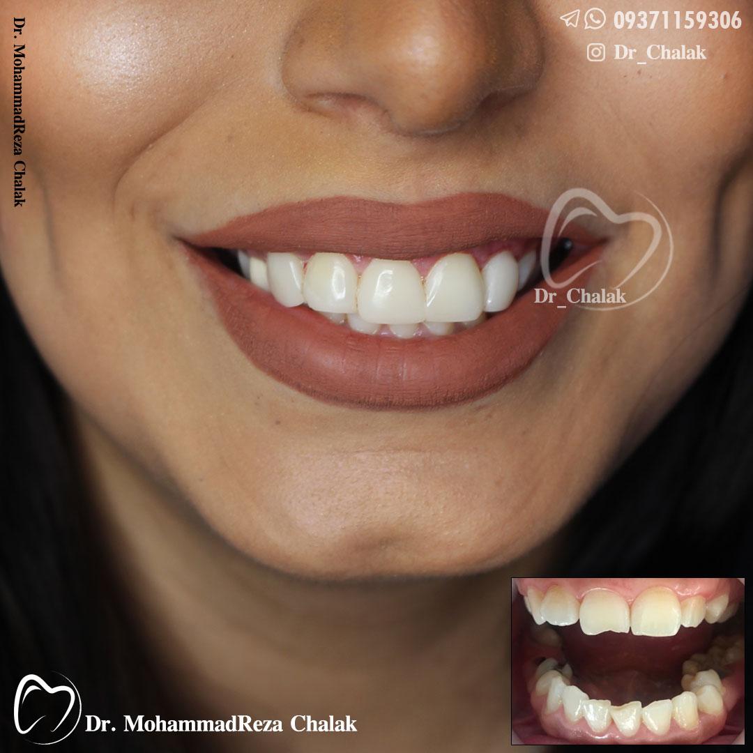 کامپوزیت ونیر همرنگ دندان