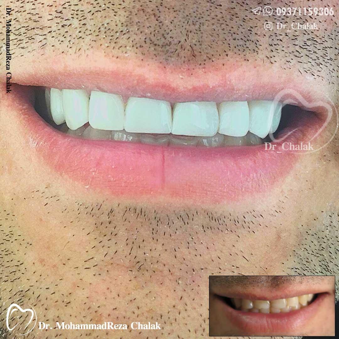 طرح لبخند-دکترچالاک