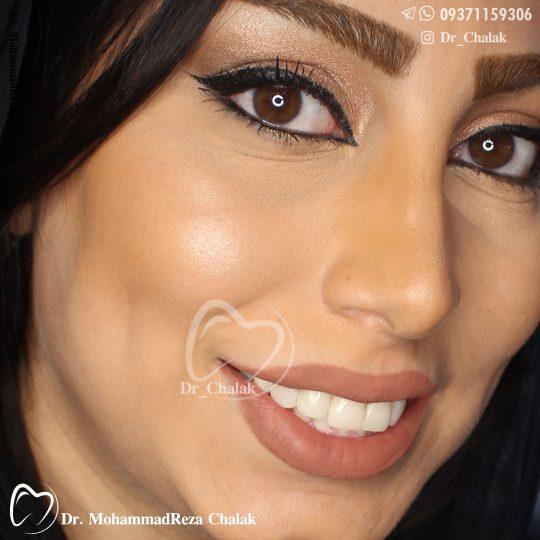 کامپوزیت ونیر همرنگ دندان رنگ طبیعی