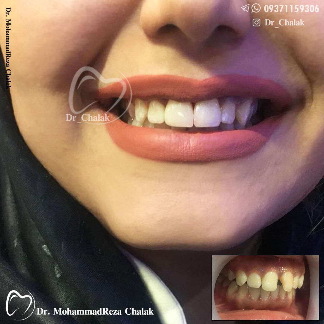 دکترچالاک-اصلاح دندان