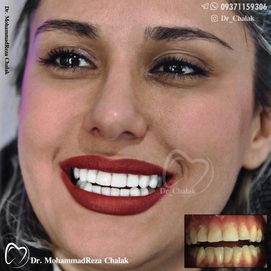 لمینیت دندان مشهد