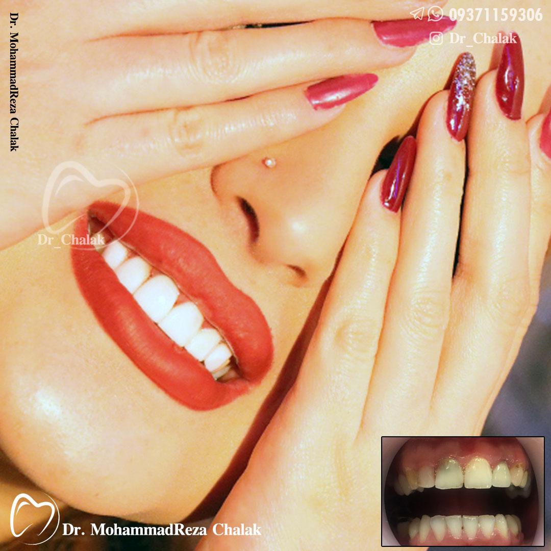 دندانپزشک زیبایی مشهد
