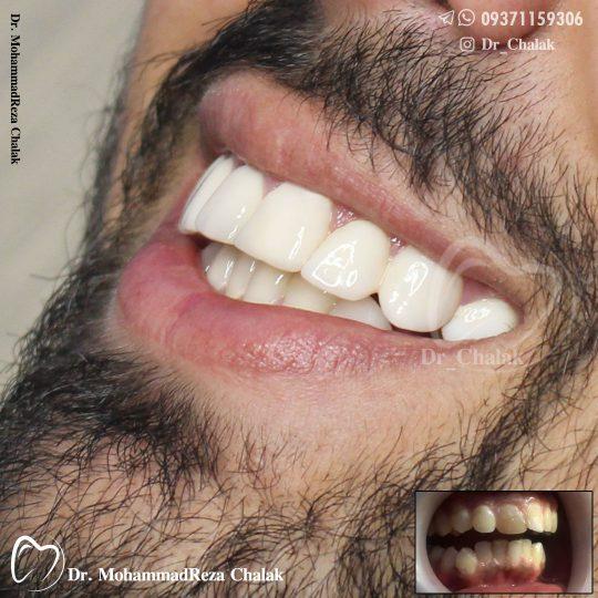 لمینیت سرامیکی دندان