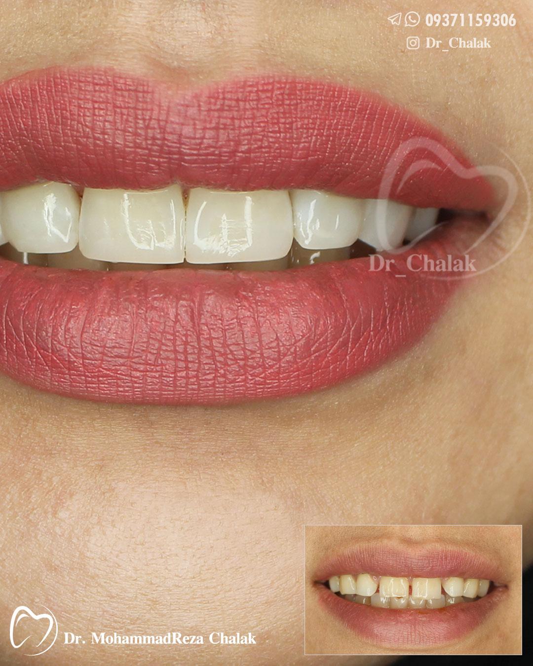 دیاستم دندانی- دکترچالاک
