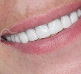 دندان روکش شده