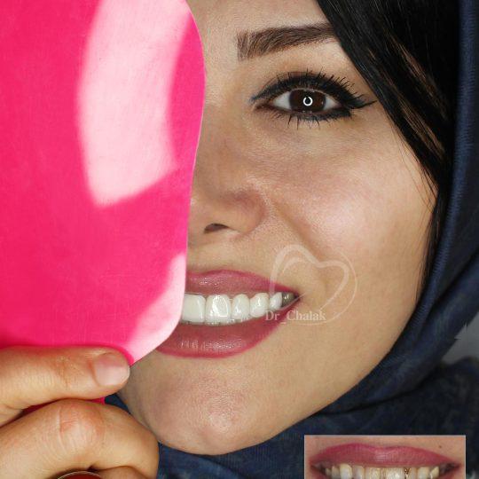 لمینیت دندان - دکتر چالاک