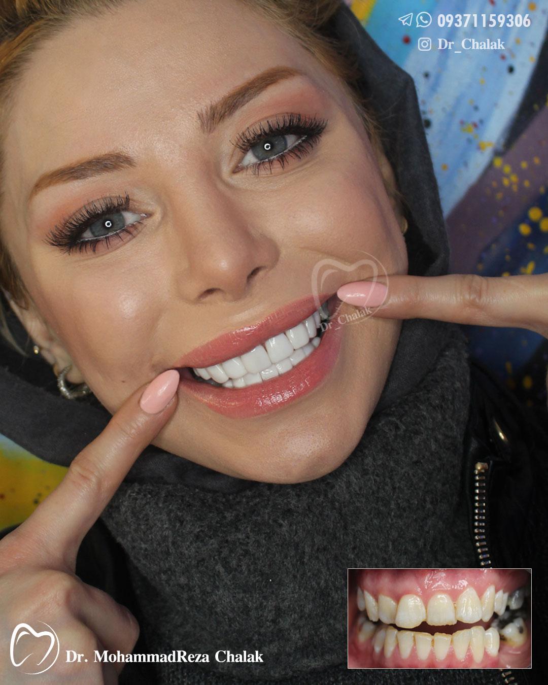 16 واحد کامپوزیت ونیر دندان